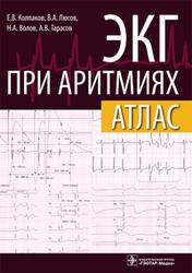 ЭКГ при аритмиях. Атлас + линейка Колпаков Е.В.