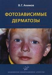 Фотозависимые дерматозы Акимов В.Г.